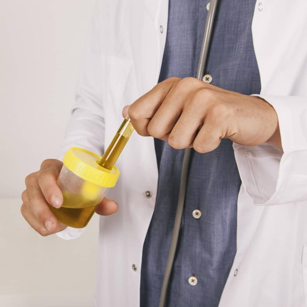 cómo recoger correctamente una muestra de orina